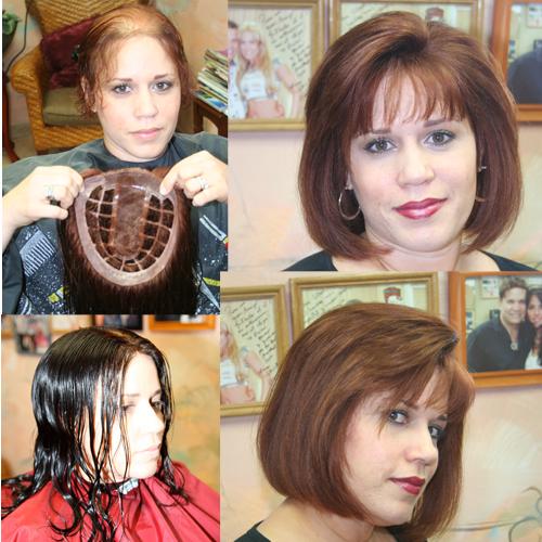 extreme hair loss