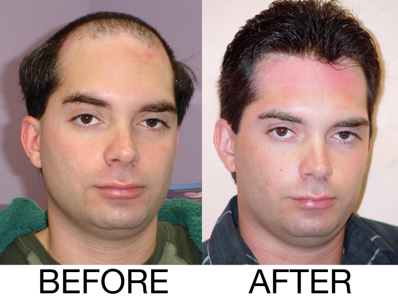 Hair Replacement For Men Gilberto Hair Center